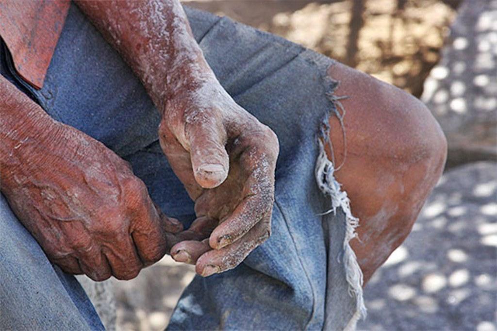 Nove pessoas submetidas a trabalho escravo são resgatadas em carvoaria