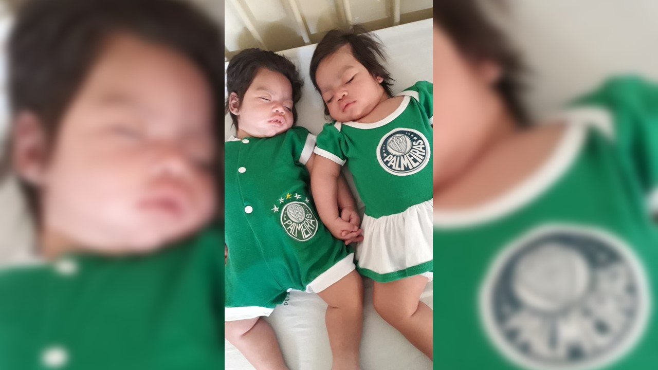 Morre em Redenção (PA) uma das gêmeas que dormiam há mais de seis meses