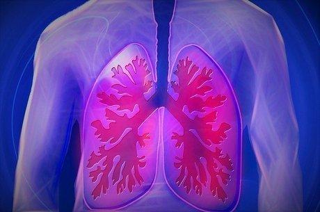 Entenda a infecção pulmonar que ocorre em recuperados da covid-19